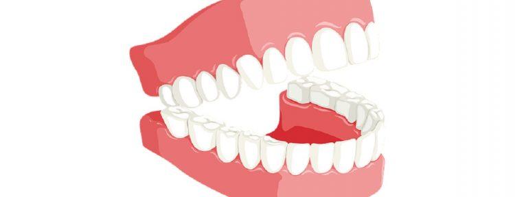 Je gebit reinigen: 5 natuurlijke middelen - Gezond aan tafel - blog